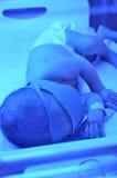 ίκτερος νεογέννητος στοκ εικόνες με δικαίωμα ελεύθερης χρήσης