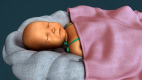 Ίκτερος σε νέο - γεννημένος στοκ εικόνες με δικαίωμα ελεύθερης χρήσης