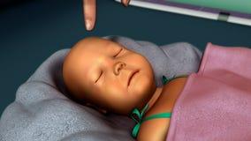 Ίκτερος σε νέο - γεννημένος στοκ φωτογραφίες με δικαίωμα ελεύθερης χρήσης