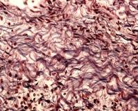 Ίνες κολλαγόνων Ασημένιος λεκές στοκ εικόνες
