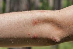 Ίχνη δαγκωμάτων κουνουπιών στον ανθρώπινο αγκώνα στοκ εικόνα