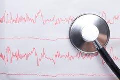 Ίχνος σφυγμού καρδιογραφημάτων και έννοια στηθοσκοπίων για τον καρδιαγγειακό ιατρικό διαγωνισμό, κινηματογράφηση σε πρώτο πλάνο Στοκ Εικόνες