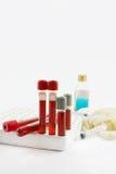 Αίμα σωλήνων για τη διαγνωστική εξέταση και τη σύριγγα Στοκ Φωτογραφία