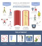 Αγγειακές ασθένειες Atherosclerosis συμπτώματα, σύνολο εικονιδίων επεξεργασίας Απεικόνιση αποθεμάτων