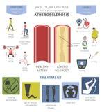Αγγειακές ασθένειες Atherosclerosis συμπτώματα, σύνολο εικονιδίων επεξεργασίας Διανυσματική απεικόνιση