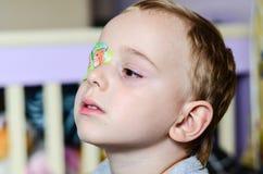 Αγόρι με Eyepatch στοκ φωτογραφία