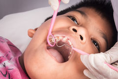 αγόρι δοντιών με εξετασμένος από έναν οδοντίατρο στοκ εικόνες με δικαίωμα ελεύθερης χρήσης