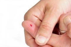 αιματηρός αντίχειρας δάχτ&upsi Στοκ φωτογραφίες με δικαίωμα ελεύθερης χρήσης