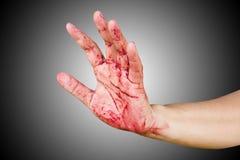 Αιματηρός απομονωμένος δολοφόνος θέματος: ο δολοφόνος παρουσιάζει αιματηρά χέρια και Στοκ Φωτογραφία