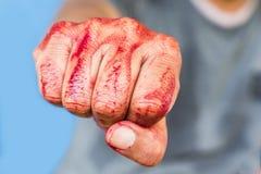 Αιματηρός απομονωμένος δολοφόνος θέματος: ο δολοφόνος παρουσιάζει αιματηρά χέρια και Στοκ εικόνες με δικαίωμα ελεύθερης χρήσης