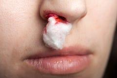 αιμορραγία της μύτης Στοκ Φωτογραφία