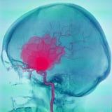 Αιμορραγώντας εγκεφαλικό ανεύρυσμα, angiogrpahy Απεικόνιση αποθεμάτων
