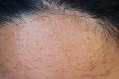 Ακμή στο δέρμα, ακμή στο πρόσωπο που προκαλείται από την ορμόνη στοκ εικόνες