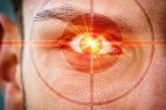 Ακτίνα λέιζερ στο μάτι Στοκ φωτογραφία με δικαίωμα ελεύθερης χρήσης