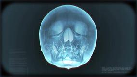Ακτίνα X βρόχων κρανίων διανυσματική απεικόνιση