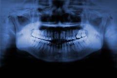 Ακτίνα X δοντιών Στοκ Εικόνες