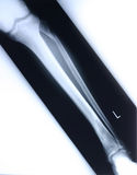ακτίνα X ποδιών στοκ φωτογραφίες