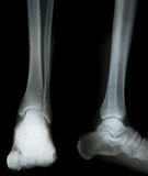 ακτίνα X ποδιών Στοκ Εικόνες