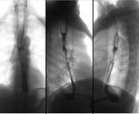 Ακτίνα X της ανώτερης γαστροεντερικής σειράς UGI με το βάριο Καρκίνος του οισοφάγου αρνητικός στοκ φωτογραφία με δικαίωμα ελεύθερης χρήσης