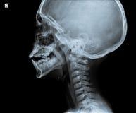 Ακτίνα X του κεφαλιού που παρουσιάζει μέρος του λαιμού Στοκ Φωτογραφίες