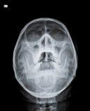Ακτίνα X του κρανίου Στοκ Φωτογραφίες