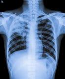 Ακτίνα X του μολυσμένου στήθους Στοκ φωτογραφία με δικαίωμα ελεύθερης χρήσης