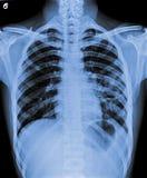 Ακτίνα X του μολυσμένου στήθους Στοκ Εικόνες