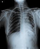 Ακτίνα X του μολυσμένου στήθους Στοκ εικόνα με δικαίωμα ελεύθερης χρήσης