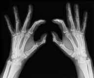 Ακτίνα X των χεριών Στοκ Εικόνες