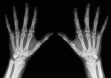 Ακτίνα X των χεριών Στοκ φωτογραφία με δικαίωμα ελεύθερης χρήσης