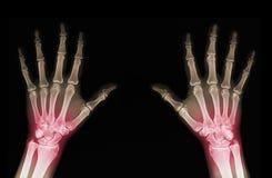 Ακτίνα X των χεριών Στοκ Εικόνα