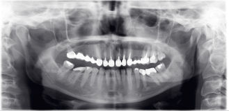 ακτίνα Χ οδοντιάτρων Στοκ εικόνες με δικαίωμα ελεύθερης χρήσης