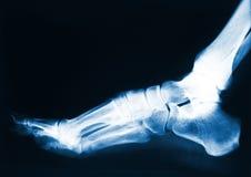 ακτίνα Χ ποδιών Στοκ φωτογραφία με δικαίωμα ελεύθερης χρήσης