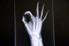 ακτίνα Χ χεριών Στοκ Φωτογραφία