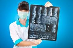 ακτίνα X γιατρών Στοκ εικόνα με δικαίωμα ελεύθερης χρήσης