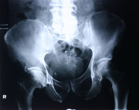 ακτίνα X ισχίων Στοκ Εικόνες