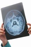 ακτίνα X κρανίων εικόνας εκ& Στοκ φωτογραφίες με δικαίωμα ελεύθερης χρήσης