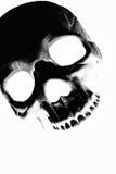 Ακτίνα X κρανίων Στοκ Εικόνες