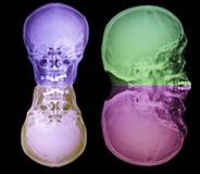 Ακτίνα X κρανίων Στοκ φωτογραφία με δικαίωμα ελεύθερης χρήσης