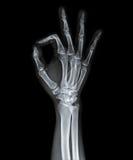 Ακτίνα X του χεριού Στοκ εικόνες με δικαίωμα ελεύθερης χρήσης