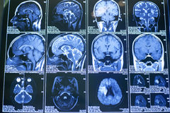 Ακτίνες X, ο ανθρώπινος εγκέφαλος Στοκ φωτογραφία με δικαίωμα ελεύθερης χρήσης