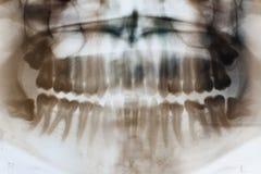 Ακτίνες X των δοντιών στοκ φωτογραφία