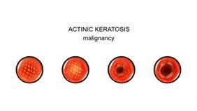 Ακτινικό keratosis malignization ελεύθερη απεικόνιση δικαιώματος