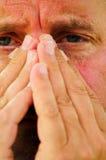 αλλεργίες Στοκ Εικόνες