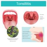 αμυγδαλίτιδα Η ανάφλεξη του μαλακού ιστού στο στόμα και του πόνου στην κατάποση εμφανίζεται απεικόνιση ελεύθερη απεικόνιση δικαιώματος