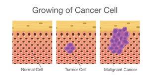 Ανάπτυξη του καρκινικού κυττάρου διανυσματική απεικόνιση