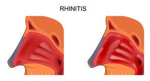 Ανάφλεξη του ρινικού mucosa ρινίτιδα διανυσματική απεικόνιση