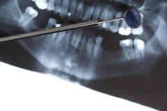 Ανίχνευση ακτίνας X των δοντιών ανθρώπων στοκ εικόνες με δικαίωμα ελεύθερης χρήσης