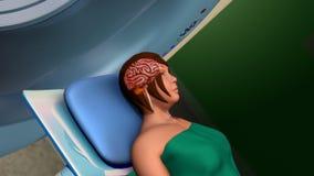Ανίχνευση απεικόνισης μαγνητικής αντήχησης (ανίχνευση MRI) Στοκ Εικόνες