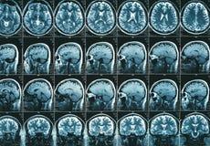 Ανίχνευση εγκεφάλου MRI ή μαγνητική αντήχηση των επικεφαλής αποτελεσμάτων εικόνας Στοκ Εικόνες